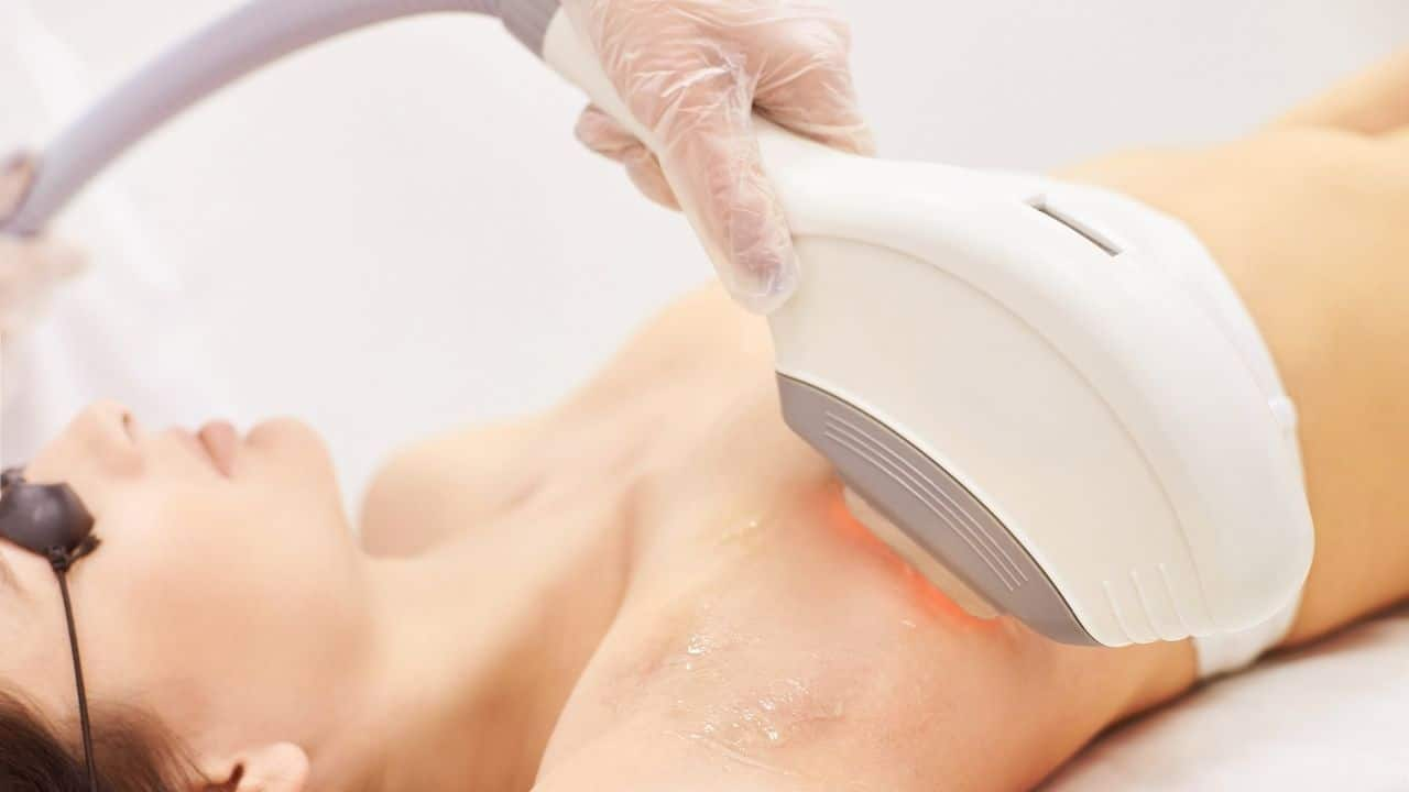 Reduce Unwanted Hair with Laser Hair Removal